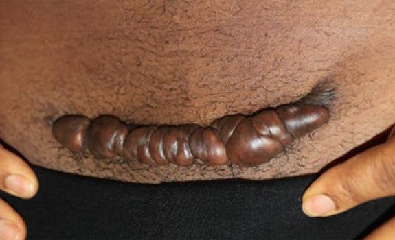 pubic keloid