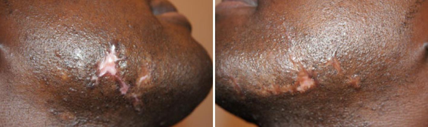 Facial Keloids