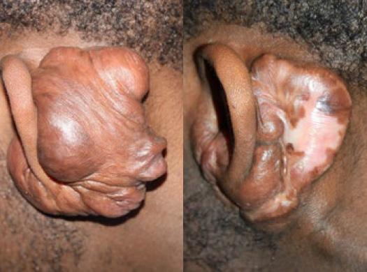 ear keloids